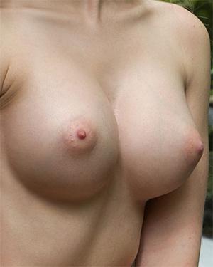 Acacia Magic Perky Tits